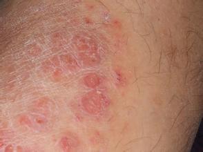 患有牛皮癣的患者可能伴什么病症