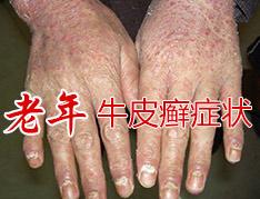 老年银屑病的症状都有哪些